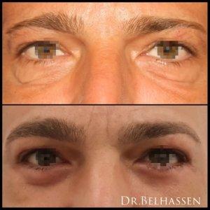 Photos avant et aprés d'un jeune homme après une séance de chirurgie esthétique chez Dr Belhassen