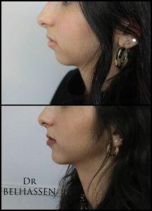 Génioplastie-chirurgie du visage chez Dr Belhassen
