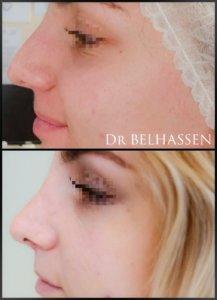 Greffe de cheveux Dr Belhassen chirurgien esthétique à Nice