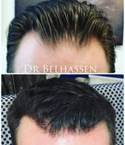 Photos avant et aprés greffe de cheveux chez Belhassen