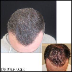 Greffe de cheveux-Dr Belhassen