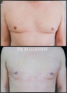 Gynécomastie-photos avant et après chez docteur Belhassen