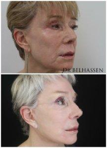 Photos avant-après chirurgie mammaire-Linfting-Dr Belhassen