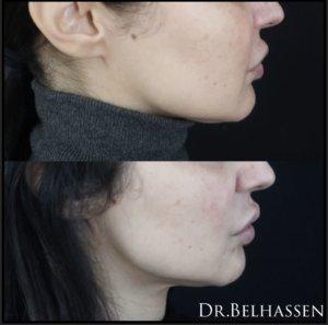 Lifting cervico-facial-chirurgie de la silhouette