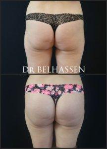 Lipofilling des fesses prothèse des fesses-Dr Belhassen