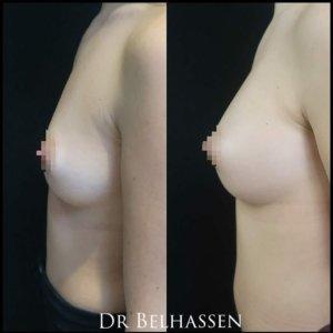Photos avant-après chirurgie mammaire-Dr Belhassen