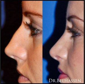 Rhinoplastie après une séance de traitement chez docteur Belhasssen