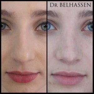 Rhinoplastie Dr Belhassen