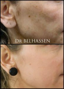 Traitement par machine Dr Belhassen1