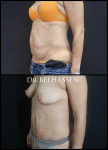 abdominoplastie-chirurgie de la silhouette