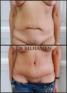 abdominoplastie photos avant et après une séance chez docteur Belhassen