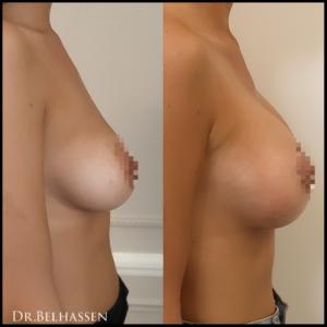 lipofiling mammaire Dr Belhassen