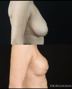 mastopexie photos avant et aprés chez docteur Belhassen