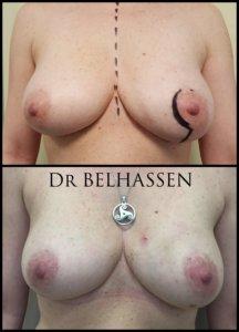 réconstruction mammaire