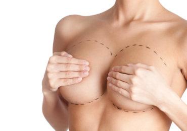 4 raisons d'opter pour l'augmentation mammaire hybride